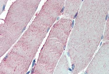Anti-ORP1 antibody, C-term used in IHC (Paraffin sections) (IHC-P). GTX10151