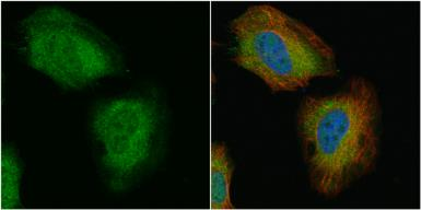 Anti-Transgelin antibody used in Immunocytochemistry/ Immunofluorescence (ICC/IF). GTX101608