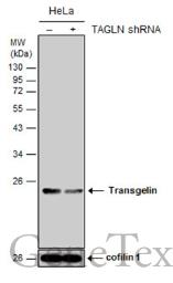 Anti-Transgelin antibody used in Western Blot (WB). GTX101608