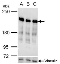 Anti-Ribosome binding protein 1 antibody [C3], C-term used in Western Blot (WB). GTX101844