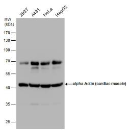 Anti-alpha Cardiac Muscle Actin antibody used in Western Blot (WB). GTX101876