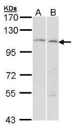 Anti-alpha Glucosidase II antibody [C2C3], C-term used in Western Blot (WB). GTX102205