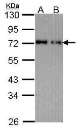 Anti-Nucleoporin p62 antibody used in Western Blot (WB). GTX102359