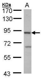 Anti-Cbl-b antibody [C2C3], C-term used in Western Blot (WB). GTX102389