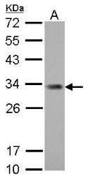 Anti-ING5 antibody [N2C1], Internal used in Western Blot (WB). GTX102482
