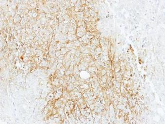 Anti-BSEP antibody [N3C1], Internal used in IHC (Paraffin sections) (IHC-P). GTX102608