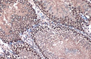 Anti-Topoisomerase II beta antibody [C3], C-term used in IHC (Paraffin sections) (IHC-P). GTX102640
