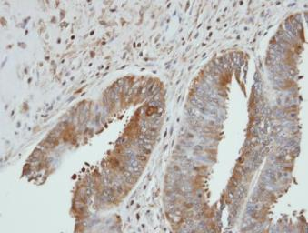Anti-UGP2 antibody [N1C1] used in IHC (Paraffin sections) (IHC-P). GTX102684
