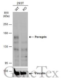 Anti-Peregrin antibody [N1N2], N-term used in Western Blot (WB). GTX102778