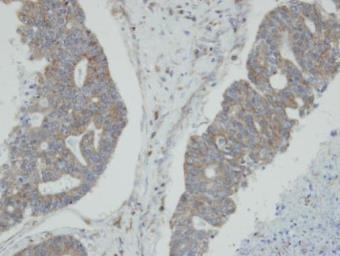 Anti-N-myc interactor antibody [N1C3] used in IHC (Paraffin sections) (IHC-P). GTX102866