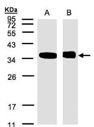 Anti-N-myc interactor antibody [N1C3] used in Western Blot (WB). GTX102866