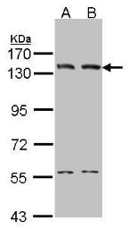 Anti-DNA ligase I antibody [C2C3], C-term used in Western Blot (WB). GTX102936
