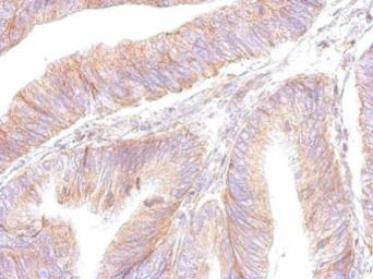 Anti-ATP synthase B1 antibody used in IHC (Paraffin sections) (IHC-P). GTX102980