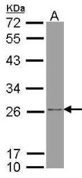 Anti-ATP synthase B1 antibody used in Western Blot (WB). GTX102980