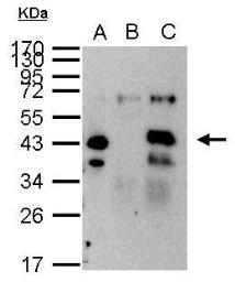 Anti-XPA antibody used in Immunoprecipitation (IP). GTX103168
