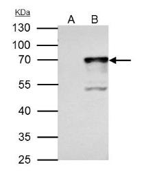 Anti-NRF1 antibody used in Immunoprecipitation (IP). GTX103179