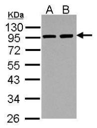 Anti-alpha Actinin 3 antibody used in Western Blot (WB). GTX103216