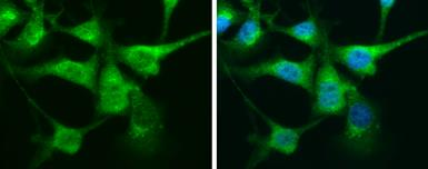 Anti-Calretinin antibody used in Immunocytochemistry/ Immunofluorescence (ICC/IF). GTX103261