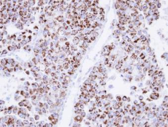 Anti-ECH1 antibody [N1C3] used in IHC (Paraffin sections) (IHC-P). GTX103552