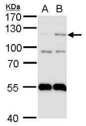 Anti-HIF2 alpha antibody [N1N3] used in Western Blot (WB). GTX103707