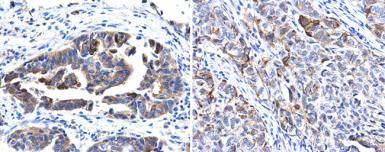Anti-Cytokeratin 17 antibody used in IHC (Paraffin sections) (IHC-P). GTX103765