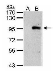 Anti-ECEL1 antibody [N3C2], Internal used in Western Blot (WB). GTX103771