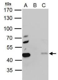 Anti-EBP1 antibody used in Immunoprecipitation (IP). GTX103791