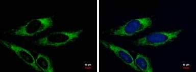 Anti-Adenylate kinase 4 antibody [N1C3] used in Immunocytochemistry/ Immunofluorescence (ICC/IF). GTX104430