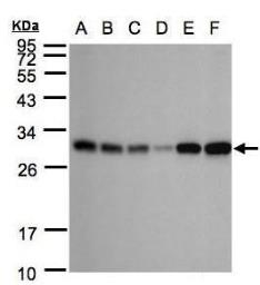 Anti-Adenylate kinase 4 antibody [N1C3] used in Western Blot (WB). GTX104430