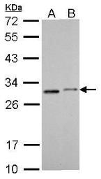 Anti-SDHB antibody [C2C3], C-term used in Western Blot (WB). GTX104628