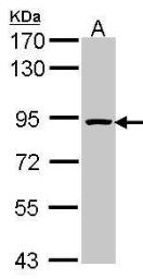 Anti-ORC3L antibody [C3], C-term used in Western Blot (WB). GTX104683