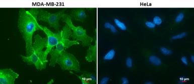 Anti-PD-L1 antibody used in Immunocytochemistry/ Immunofluorescence (ICC/IF). GTX104763
