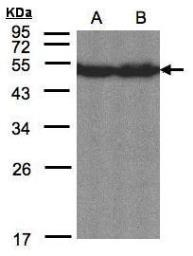 Anti-CREB3L1 antibody [C3], C-term used in Western Blot (WB). GTX104818