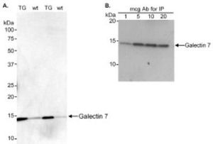Anti-Galectin 7 antibody used in Immunoprecipitation (IP). GTX10482