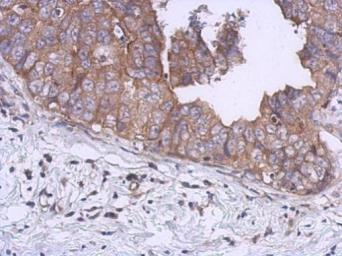 Anti-KIF5B antibody [C3], C-term used in IHC (Paraffin sections) (IHC-P). GTX104874