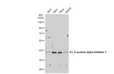 Anti-G protein alpha Inhibitor 1 antibody used in Western Blot (WB). GTX105292