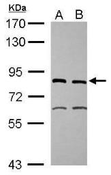 Anti-XPD antibody [N2C2], Internal used in Western Blot (WB). GTX105357