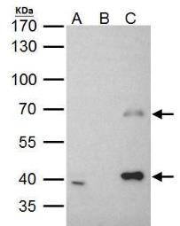 Anti-MSL3L1 antibody used in Immunoprecipitation (IP). GTX105652