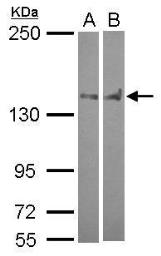 Anti-Pez antibody [C2C3], C-term used in Western Blot (WB). GTX105769