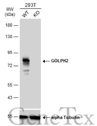Anti-GOLPH2 antibody [C3], C-term used in Western Blot (WB). GTX107702