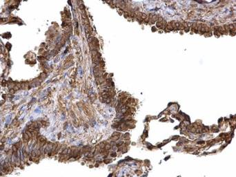 Anti-PKM antibody used in IHC (Paraffin sections) (IHC-P). GTX107977