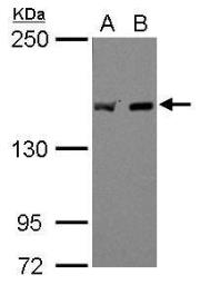 Anti-EEA1 antibody [C3], C-term used in Western Blot (WB). GTX109638