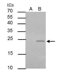 Anti-PUMA antibody [C2C3], C-term used in Immunoprecipitation (IP). GTX109675