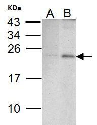 Anti-PUMA antibody [C2C3], C-term used in Western Blot (WB). GTX109675