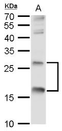 Anti-TNF alpha antibody used in Western Blot (WB). GTX110520