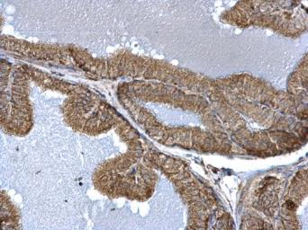 Anti-FIS1 antibody used in IHC (Paraffin sections) (IHC-P). GTX111010