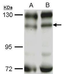 Anti-PI3 kinase p110 beta antibody [N3C2], Internal used in Western Blot (WB). GTX111173
