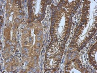 Anti-Ezrin antibody [N2C2], Internal used in IHC (Paraffin sections) (IHC-P). GTX111709