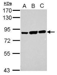 Anti-Ezrin antibody [N2C2], Internal used in Western Blot (WB). GTX111709
