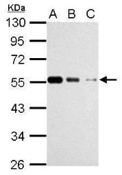 Anti-beta Tubulin antibody used in Western Blot (WB). GTX112658